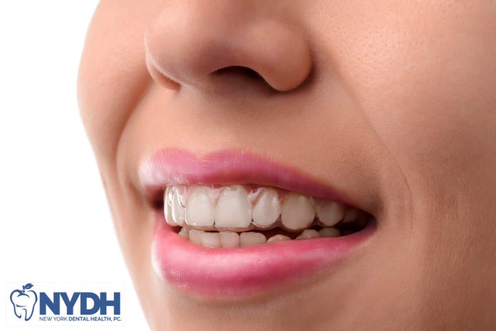 How Invisalign Gains Edge Over Other Restorative Dentistry for Good Smile in Bronx, NY?