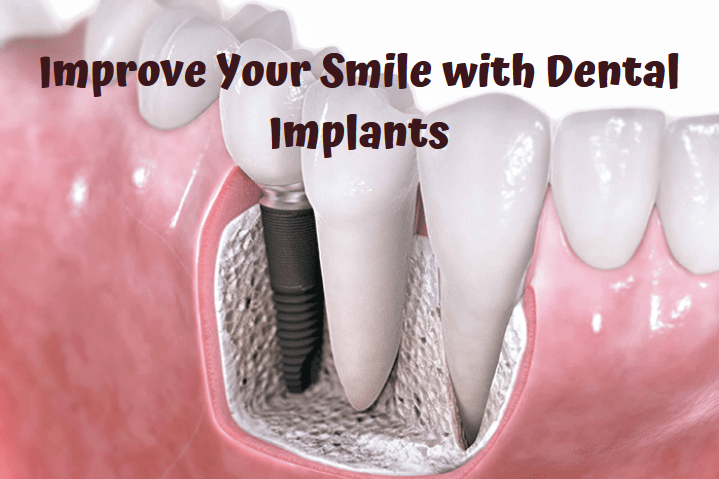 What is Dental Implants Bronx NY and Why Should You Care for a Healthy Smile?